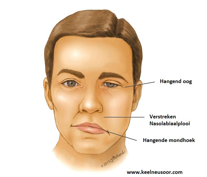 Afbeeldingsresultaat voor facialis parese