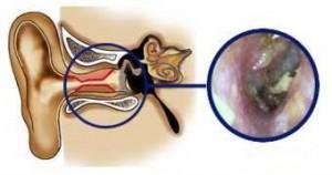afscheiding in de gehoorgang bij otitis externa